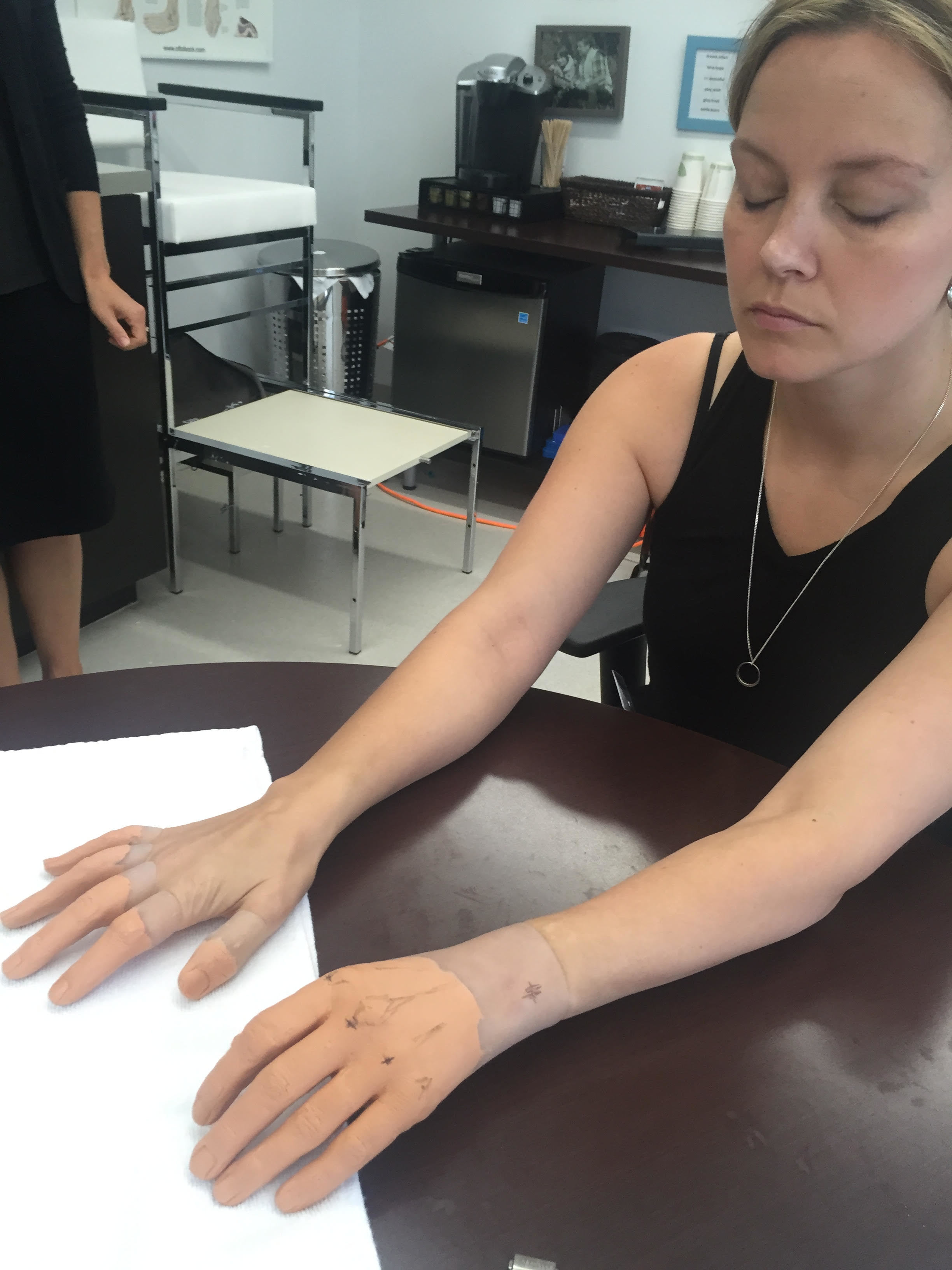 Elaine Dodge-Lynch getting fitted for her prosthetic hands at the Ottobock lab. (Submitted)