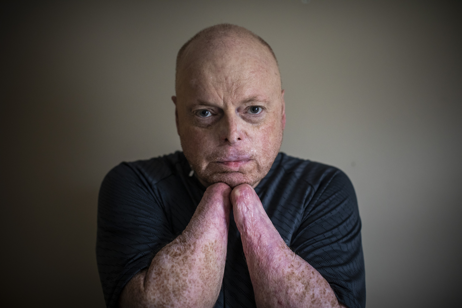 Richard Thompson, who has been selected as a candidate for Canada's first double hand transplant, pictured in his apartment in Coquitlam, B.C., on Feb. 27, 2020. (Ben Nelms/CBC Vancouver)