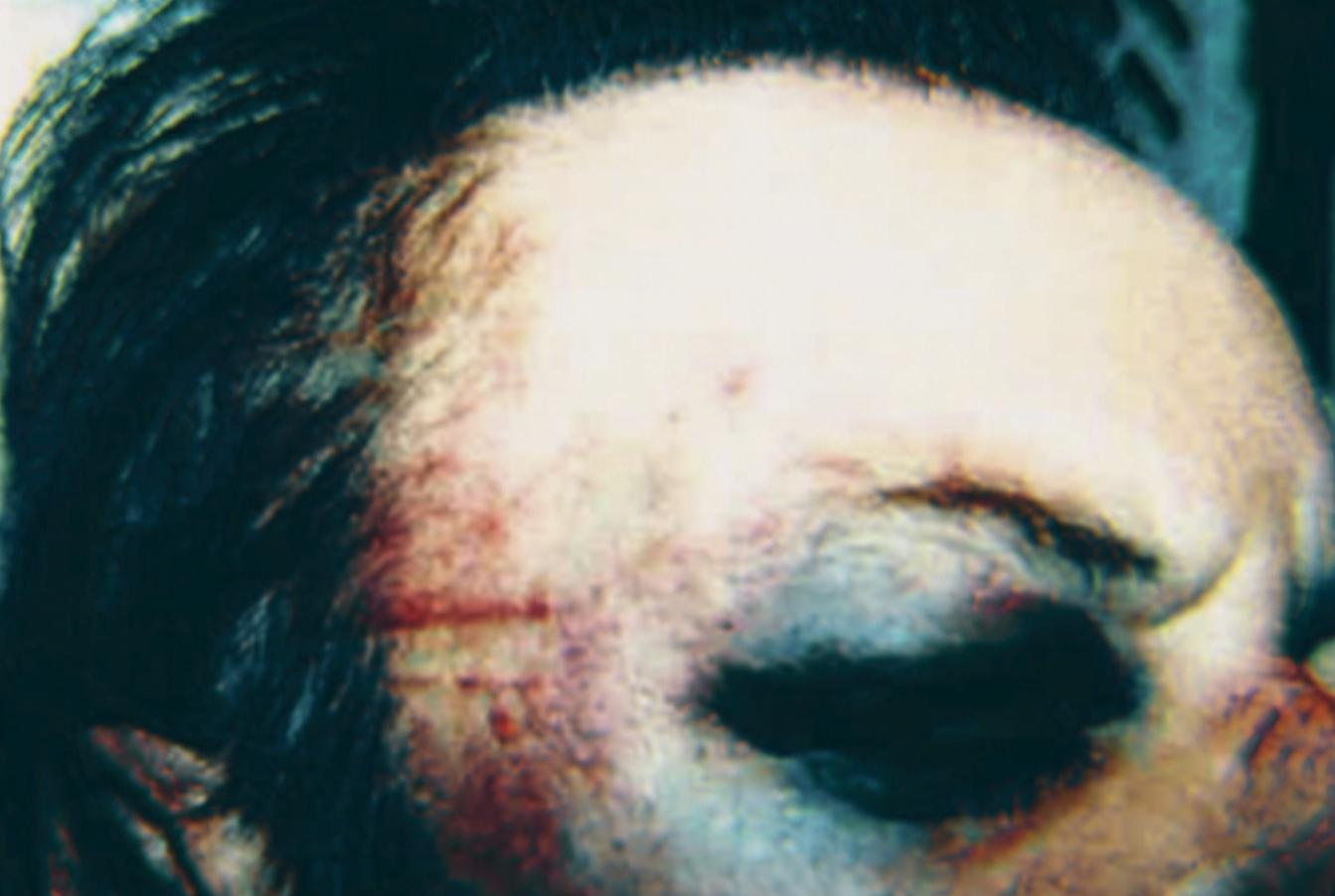 Penner took photos of his injuries after his 2003 arrest. (Submitted by Wayne Penner)