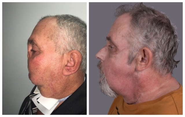 Maurice Desjardins, before and after the surgery. (Maisonneuve-Rosemont Hospital)
