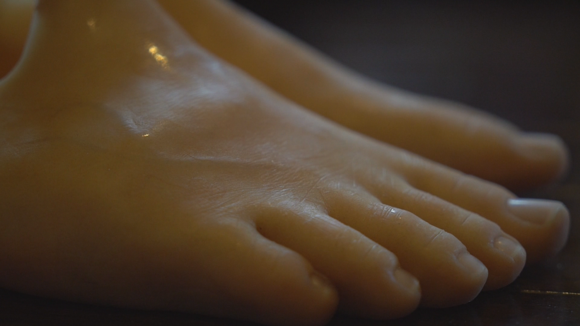 Elaine Dodge-Lynch said her prosthetic feet cost over $10,000 each. (Sherry Vivian/CBC)