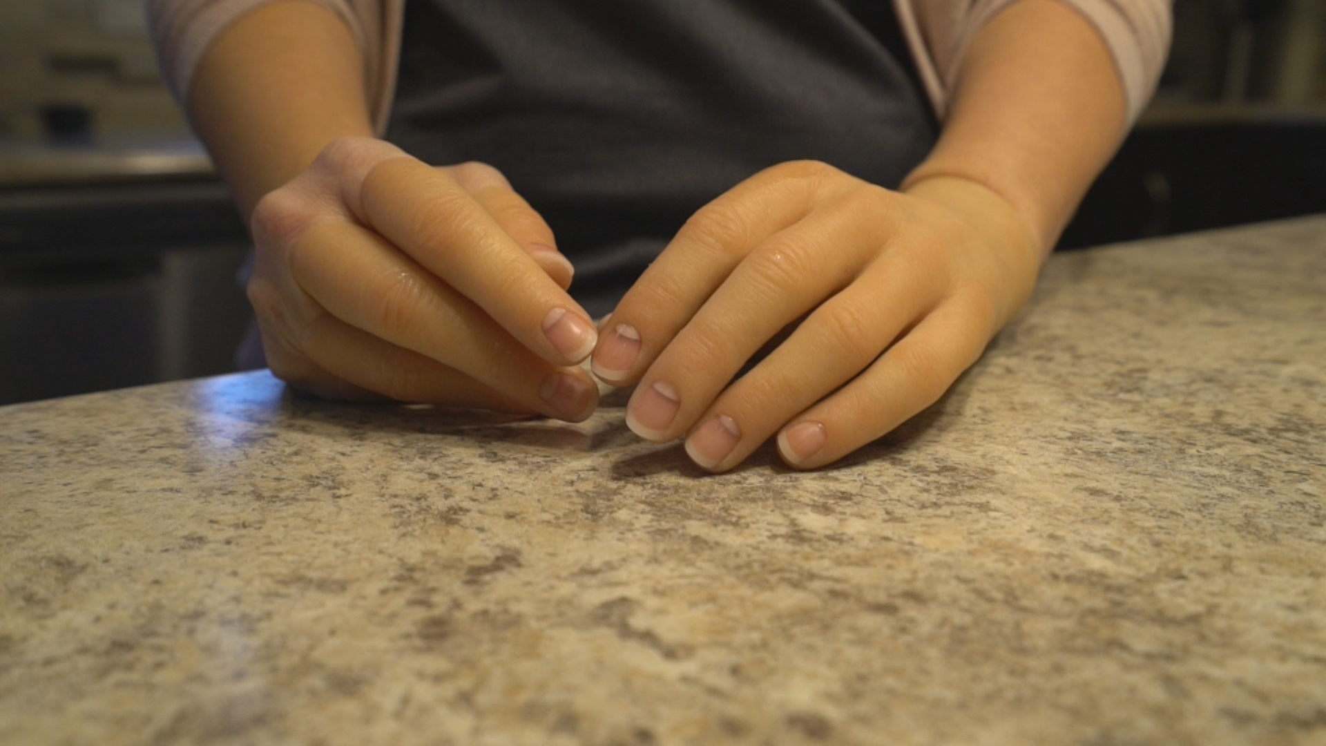 Elaine Dodge-Lynch said there was a lot of artistry involved in crafting her prosthetic hands. (Sherry Vivian/CBC)