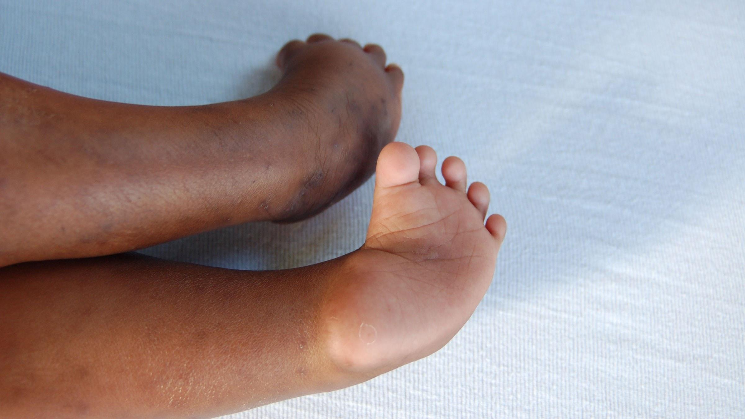 Feet Xl