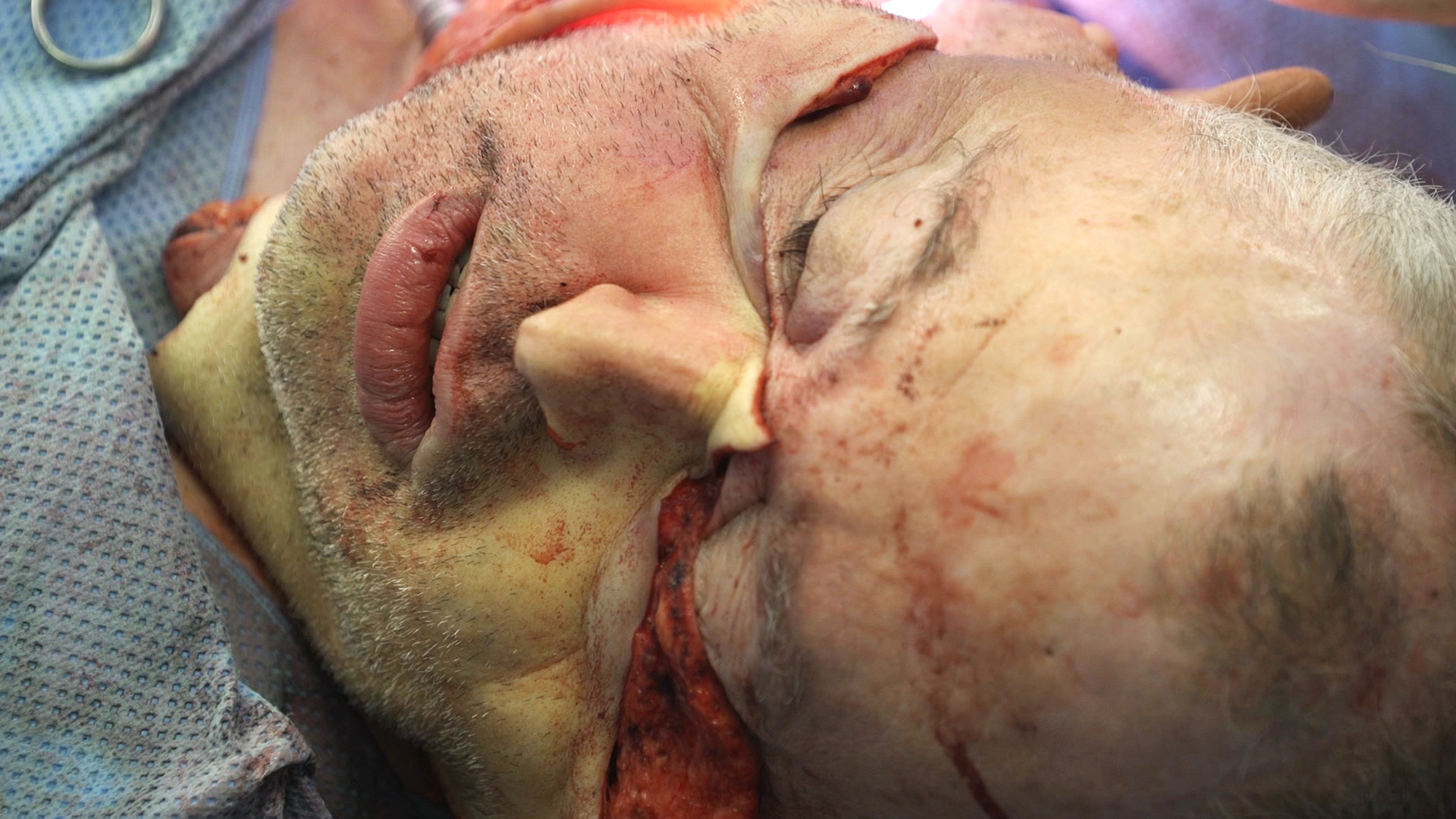In all, it took 16 hours to prepare Desjardins's face, 12 hours to remove the donor's and 18 hours to transplant the graft. (Michel Riverin/Radio-Canada)